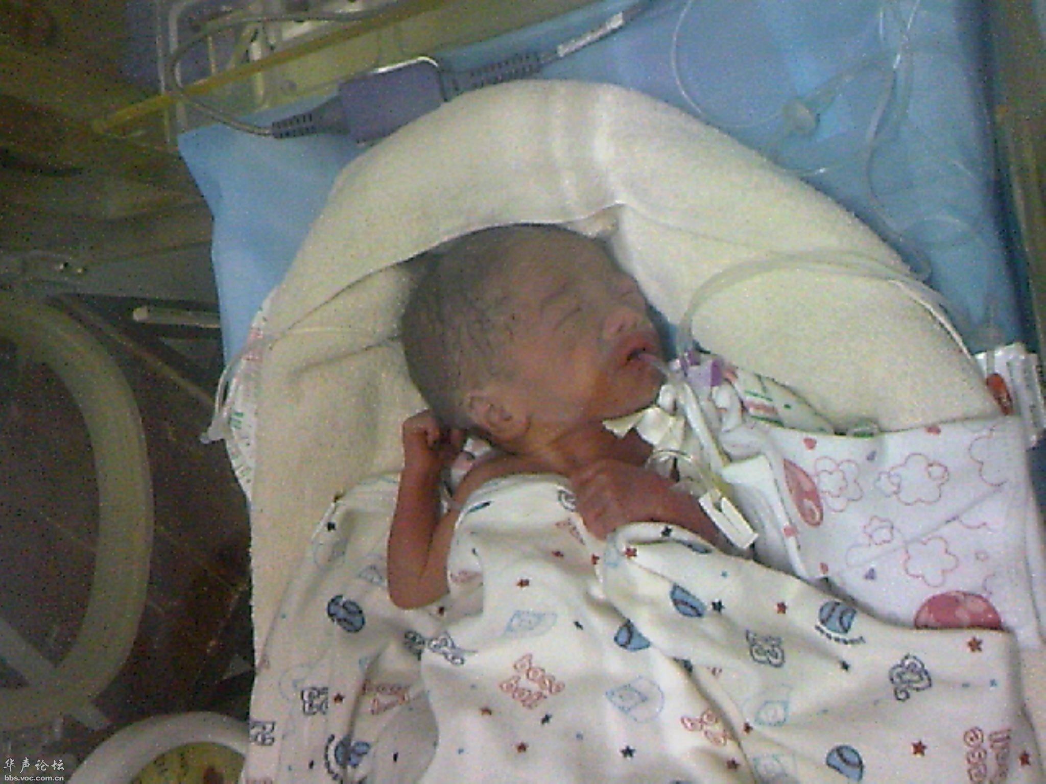 放在恒温箱里的拇指小宝宝,体重仅900克.-900克 拇指女婴降临