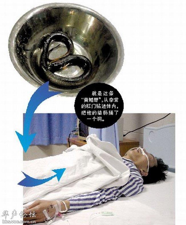 图文 黄鳝从肛门钻入人体内近5小时 灌水 科