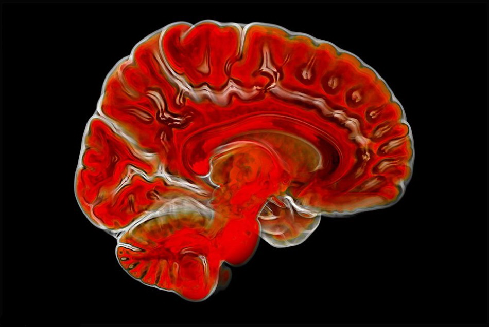 科学镜头下的不可思议之美 结构复杂的人脑等